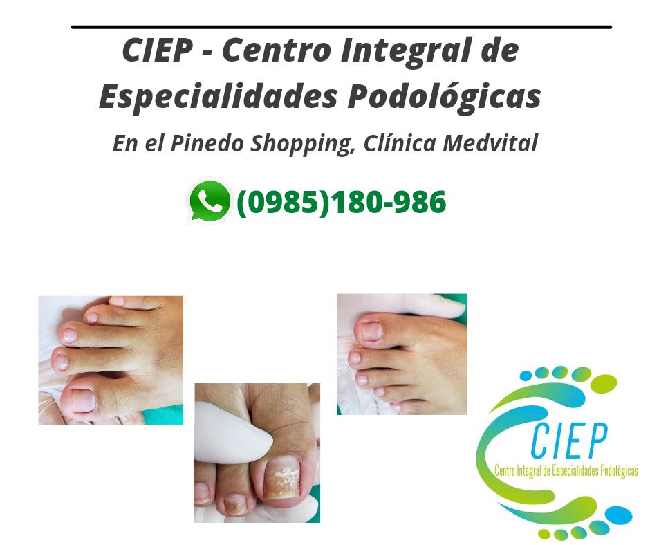 CIEP, Centro Integral de Especialidades Podológicas.